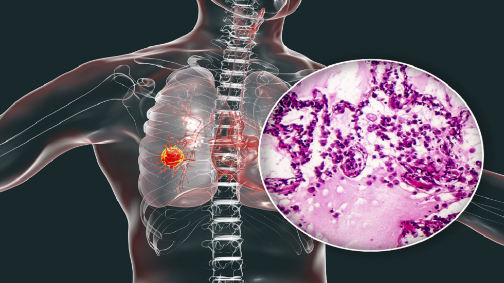You should know 4 strange symptoms of lung cancer